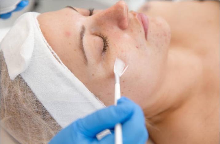 gel masker acne - Young Skin Care Vernieuwd - nieuws