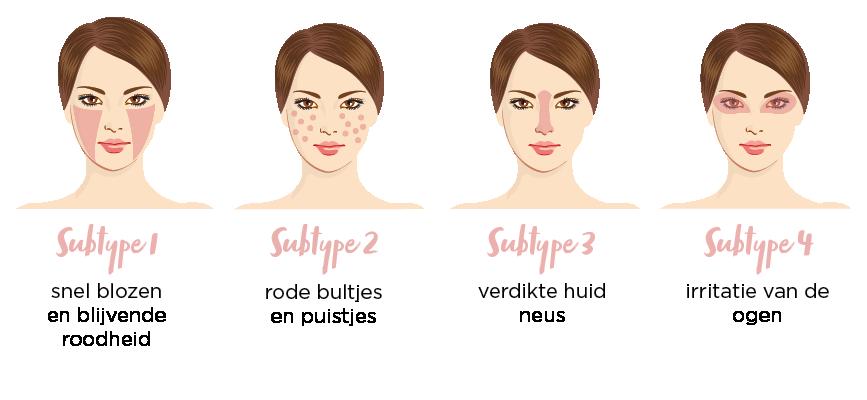 Subtypes Rosacea nl - Nieuw! Rosa Face Care - nieuws